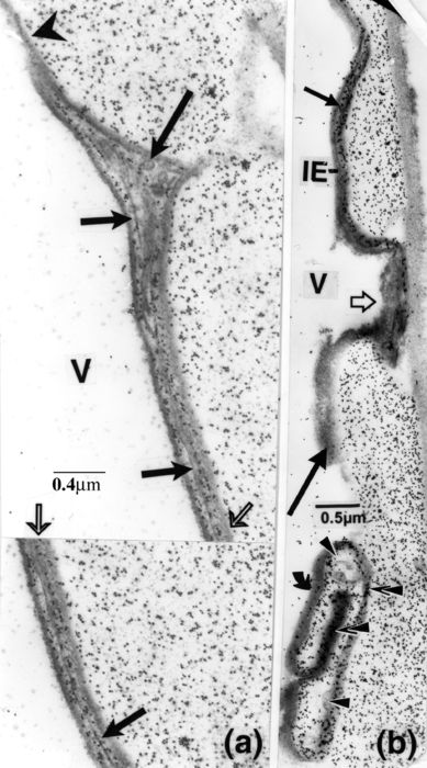 IE, irregular element; V, vessel wall. Labelling for chitin. (a): vesicular bodies (long arrow) and membranous structures (short arrows) are present in matching portions (light arrows) of a labelled IE, which spanned a long distance over the labelled vessel secondary wall. Note: gold particles are nil over the IE-delimiting bands, including that affixed to the vessel wall and extending (arrowhead) past the IE. (b): one part of an IE (short arrow), apposed to a labelled vessel secondary wall and bordered by opaque bands, is overladen with numerous gold particles, as is its extension (light arrow) over the pit membrane; the contiguous part (long arrow) is not labelled. A patch of strongly labelled material (except in the presence of fine components, arrowheads) is encircled by an opaque band (curved arrow); strong labelling of the band is limited to the portion encompassing the vessel wall (superimposed arrowheads).