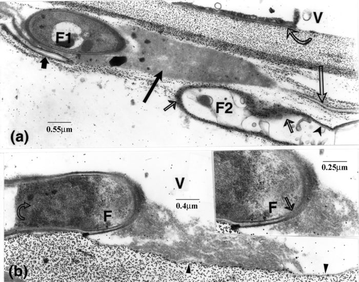 F, fungal element; V, vessel element. (a, b): labelling for cellulose. (a): next to a vessel element, an intramural mass of fine matter (long, dark arrow) borders cell F1 and abuts below (long, light arrow) on a tiny element, delineated by opaque bands. Cell F2 is delimited by an opaque layer overlaid by many gold particles (thin, light arrows), except the portions containing a lucent layer (arrowhead). A similar layer occurs in cell F1 and at the tip of the adjacent microhyphal element (short, opaque arrow). A thin IE is included in opaque matter apposed to the vessel wall (curved arrow). (b): a mass of homogeneous matter, connected to a fungal cell by means of filamentous-like matter (arrow, inset), is separated from the vessel wall by a band of similar opacity (arrowheads). The area corresponding to the cell nucleus (curved arrow) is discernible but not clearly demarcated, whereas the plasma membrane nearby is distinct.