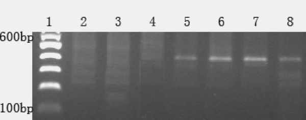 PCR results of various genomic DNA amplified by RAPD primer R1.